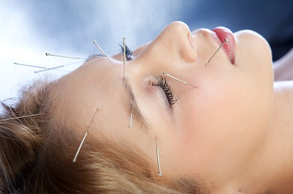 Acupuncture de revitalisation faciale